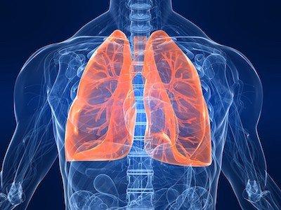 Ipertensione polmonare - Pneumologia a Palermo